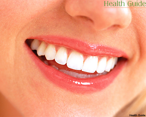 Teeth whitening using hydrogen peroxide