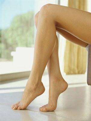 Varicose veins prevention